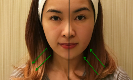 Say Goodbye to Chubby Cheeks (without Surgery or Makeup)